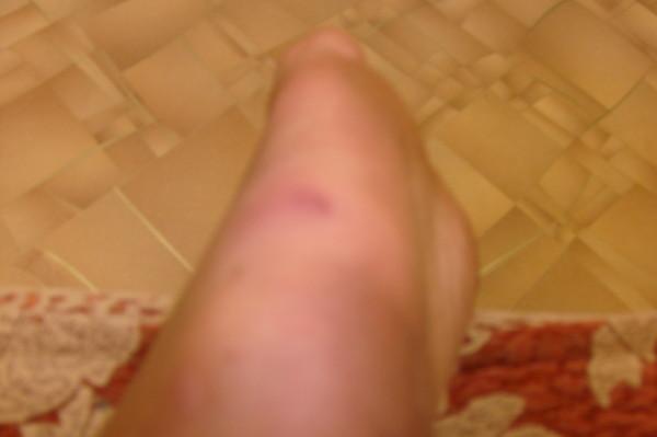 Прокол ноги ржавым гвоздем лечение в домашних условиях