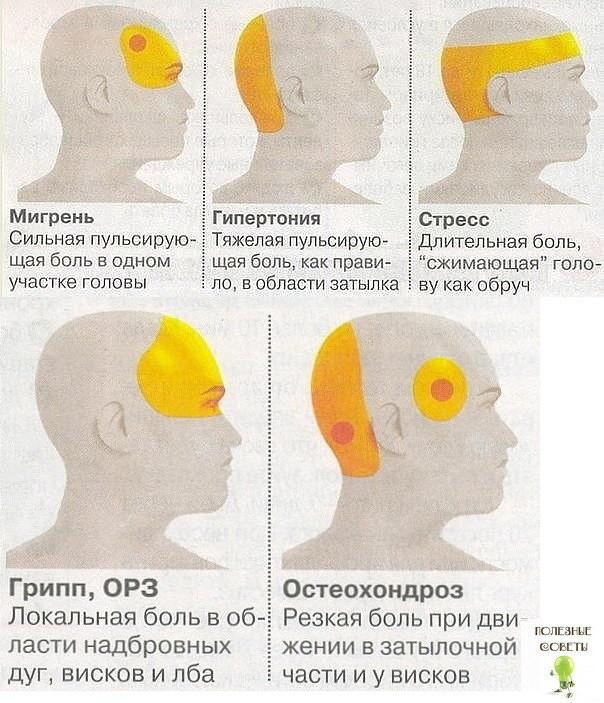 Из-за чего может сильно болеть лобная часть головы с права