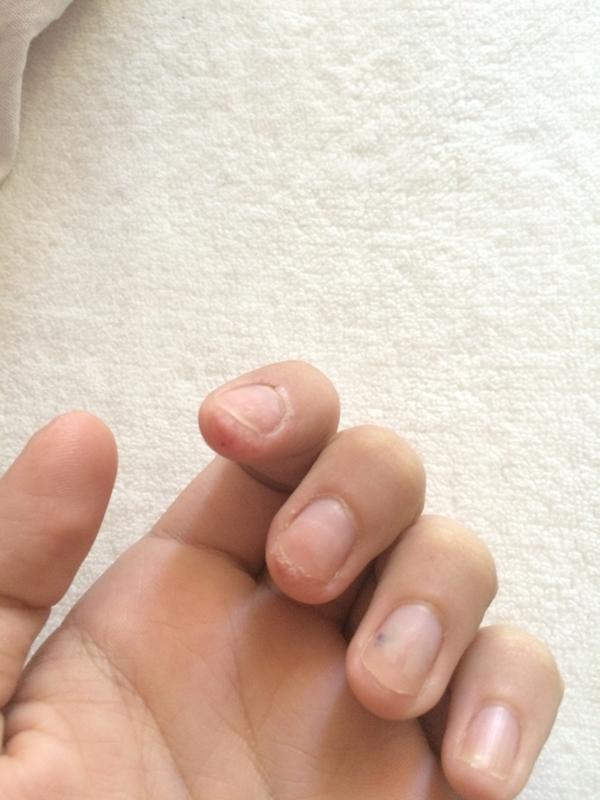 Бородавка на ногте ноги