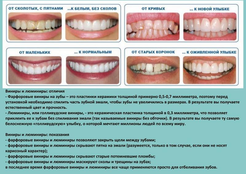 Как выровнять зуб самостоятельно