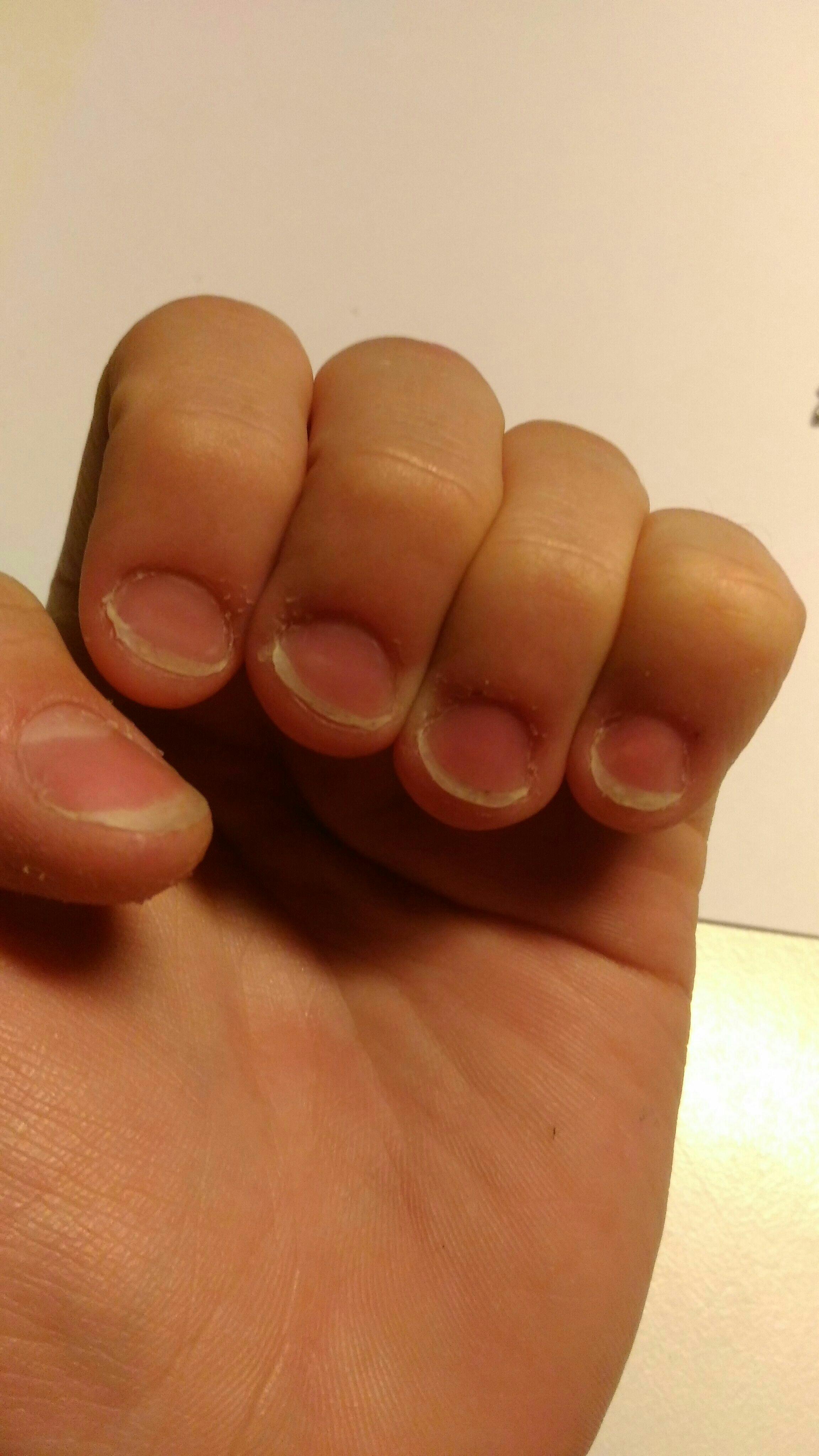 Когда грызет ногти