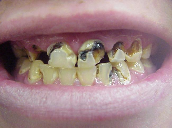 Что делать когда гниет зуб в домашних условиях - Вязание крючком и спицами Наша Пряжа