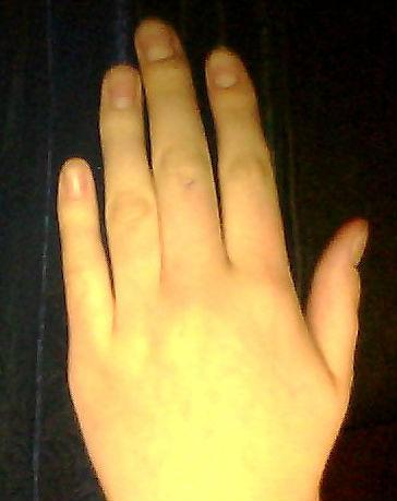 Как сделать один палец толще