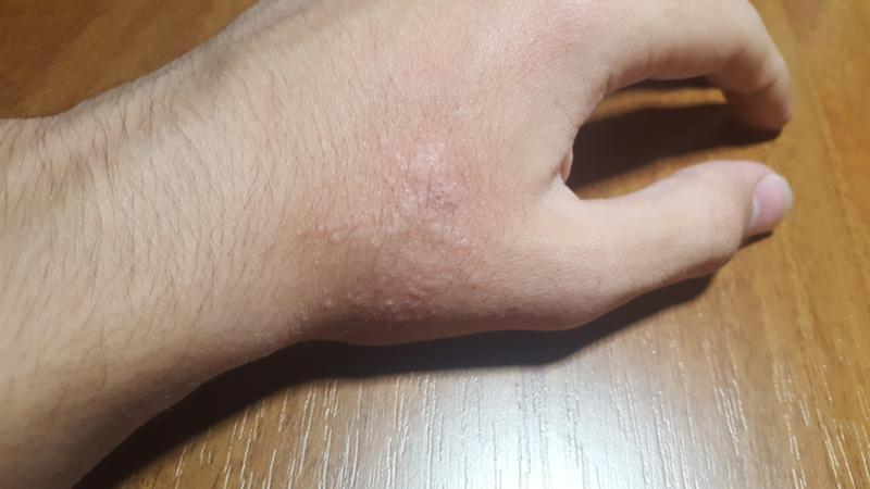 Цыпки на руках как избавиться в домашних условиях