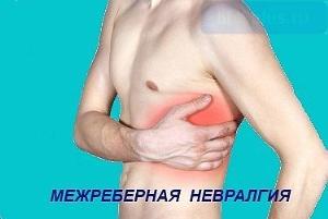 Как лечить невралгию в домашних условиях симптомы и лечение