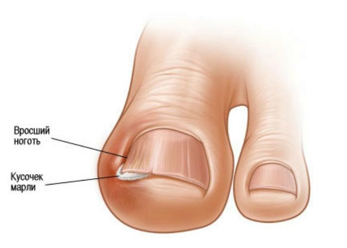 Как избавится от вросшего ногтя в домашних условиях на ноге видео