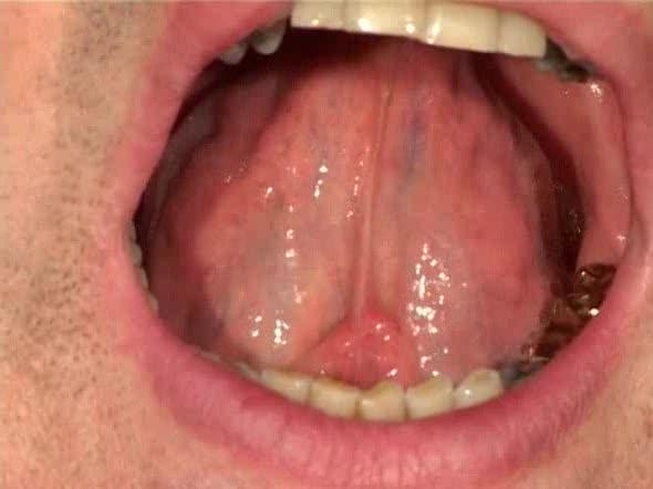 Клиника занимающаяся заболеваниями слизистой рта Интересное в мире сегодня Mebel-zavod.ru