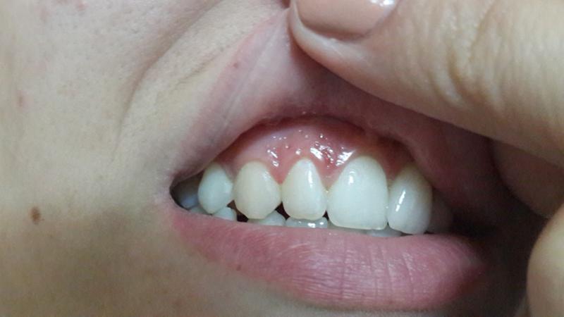 Второй зуб над зубом