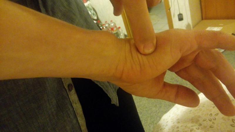 Почему чешутся руки от локтя до кисти