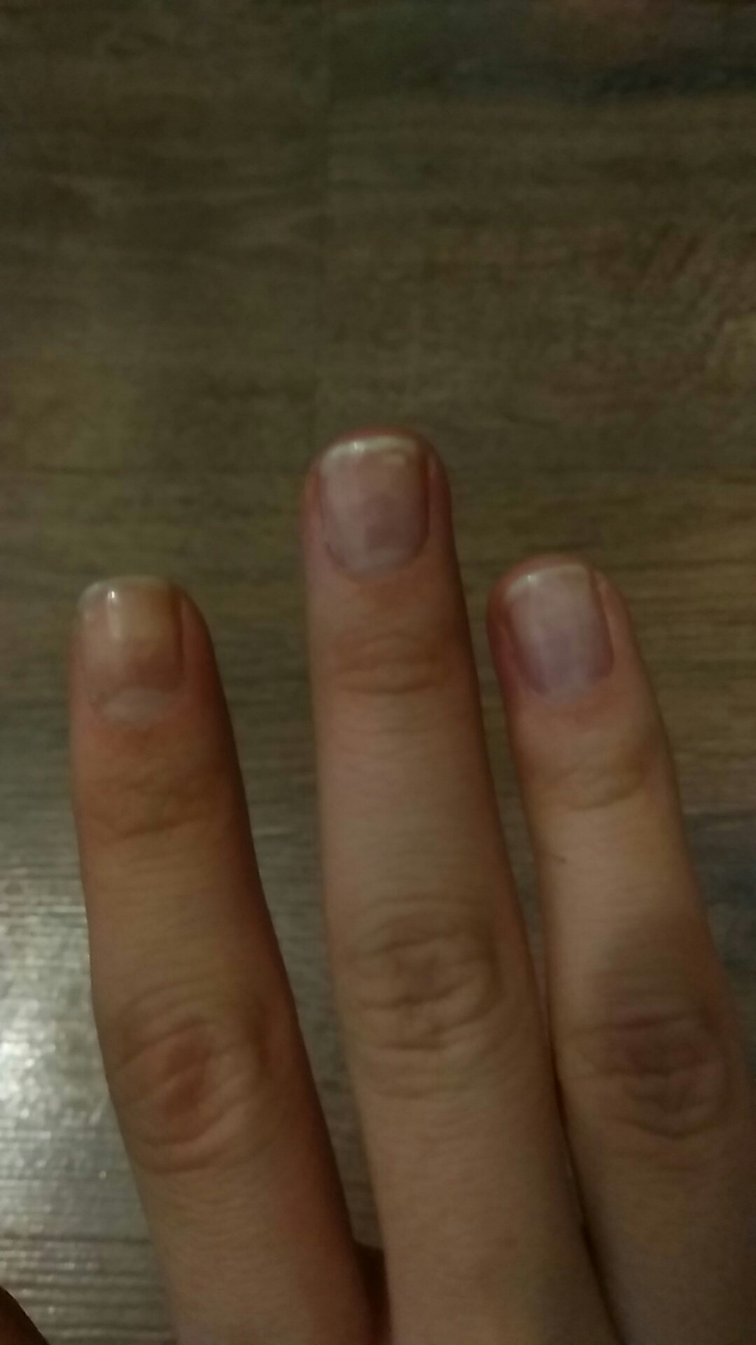 Продольные полосы на ногтях рук фото