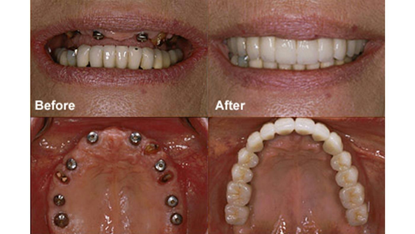 Сколько стоят импланты верхних зубов