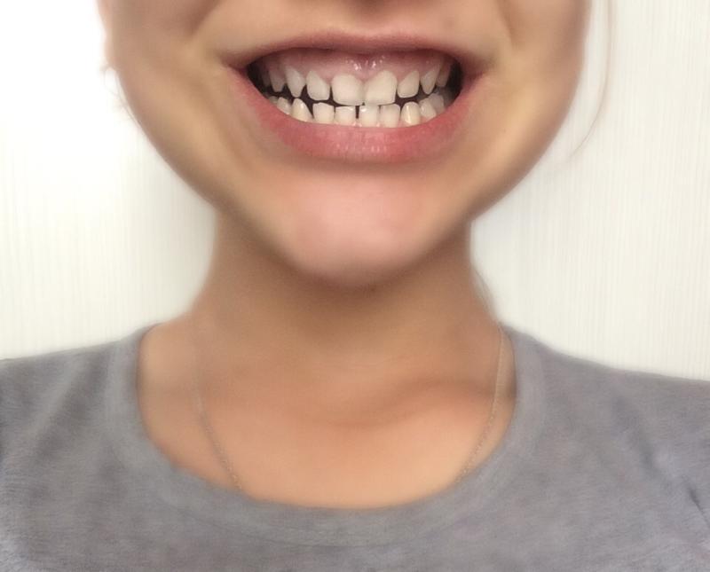 Как из щели между зубами сделать 256