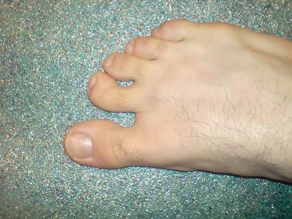 Что делать если на ногах кривые пальцы