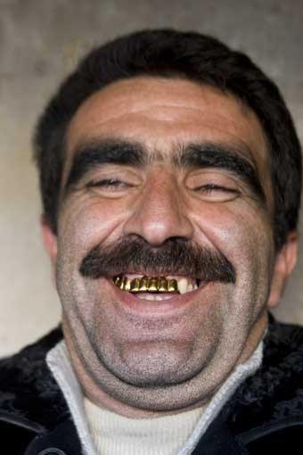 Мужик с золотыми зубами