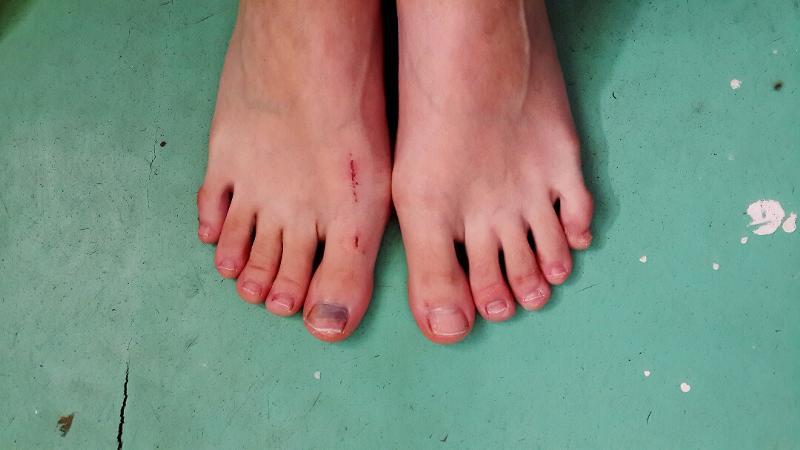 Сам отпал ноготь на ноге