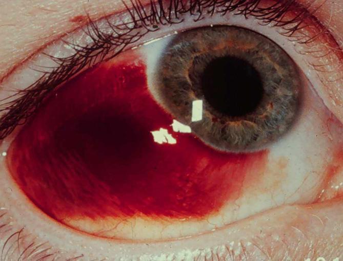 Лопнул сосуд в глазу: причины, симптомы, что делать 15