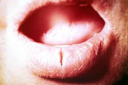 Почему у ребёнка трескается нижняя губа