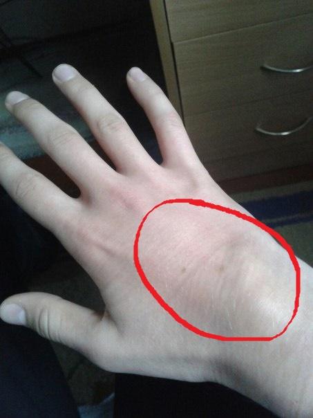 рука болит при сгибании и немеет
