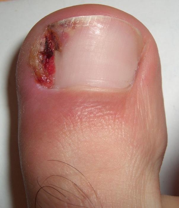Воспалился палец на ноге с вросшим ногтем