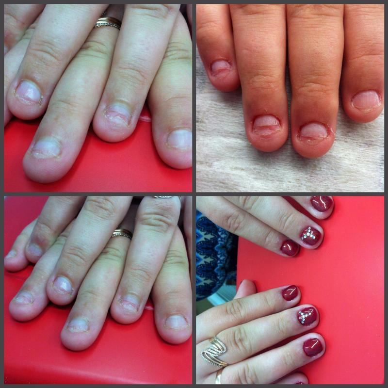 Как отучится грызть ногти в домашних условиях