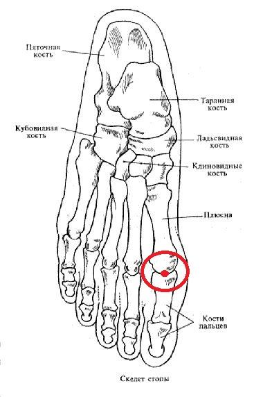 Строение стопы рисунок схема кости болезни