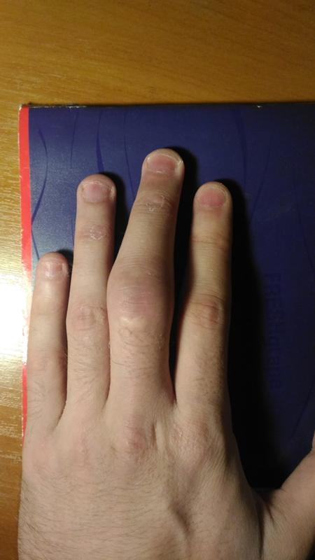 Вывих пальца как лечить в домашних условиях 280