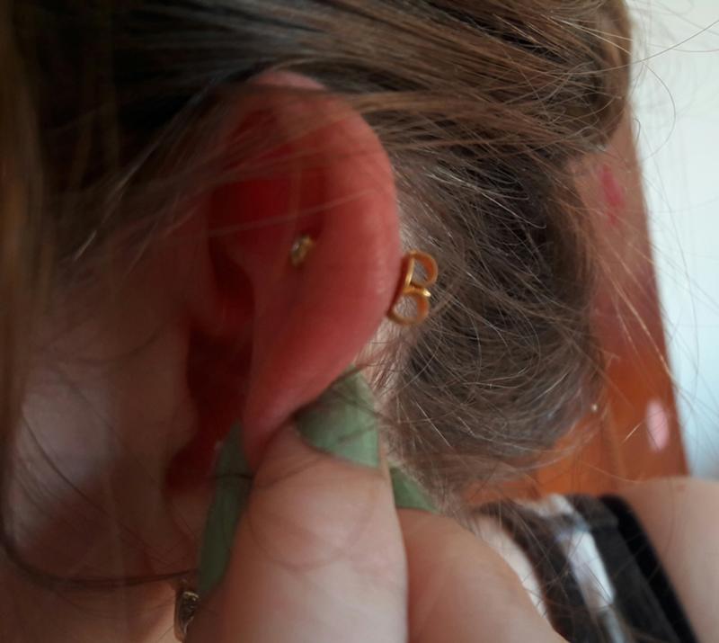 Что сделать чтобы не болело ухо в домашних условиях 876
