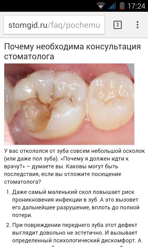 К чему снится откалывающийся зуб