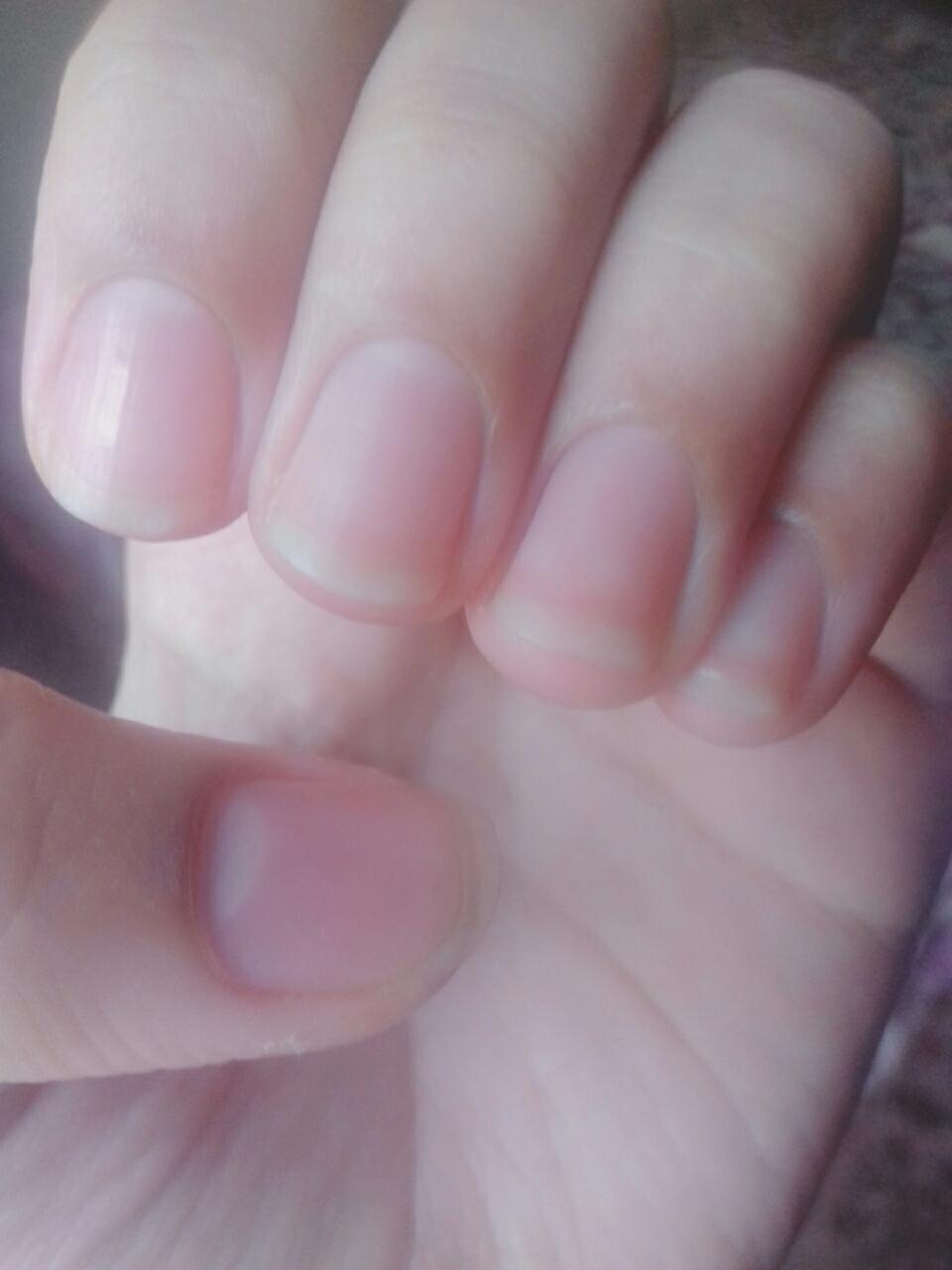 Изменение формы ногтей фото