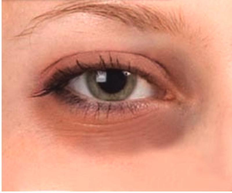 Почему коричневые круги вокруг глаз у мужчин