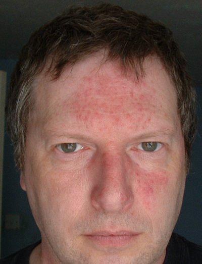 Покраснение кожи вокруг носа и лба