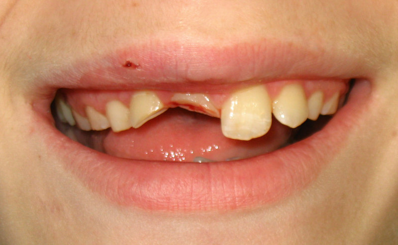 Мог ребенок упав сломать зуб
