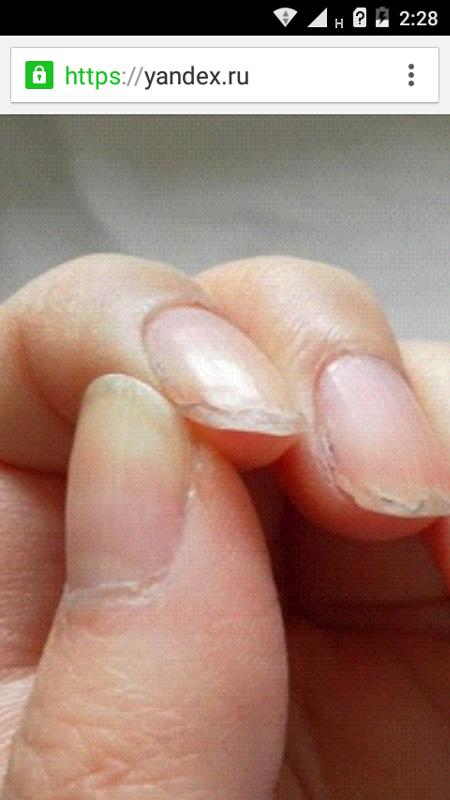 Слоятся и ломаются ногти а волосы выпадают