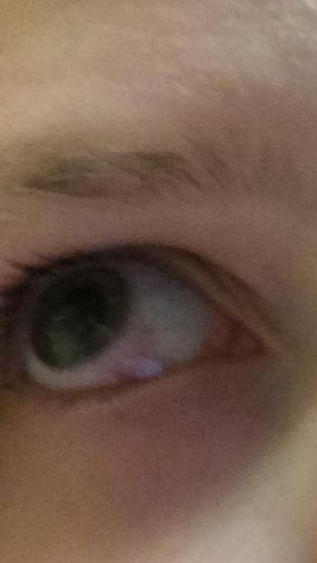 Что делать если ткнул ногтем в глаз