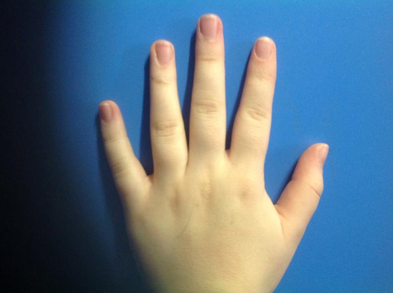 Как сделать пальцы толстыми 273