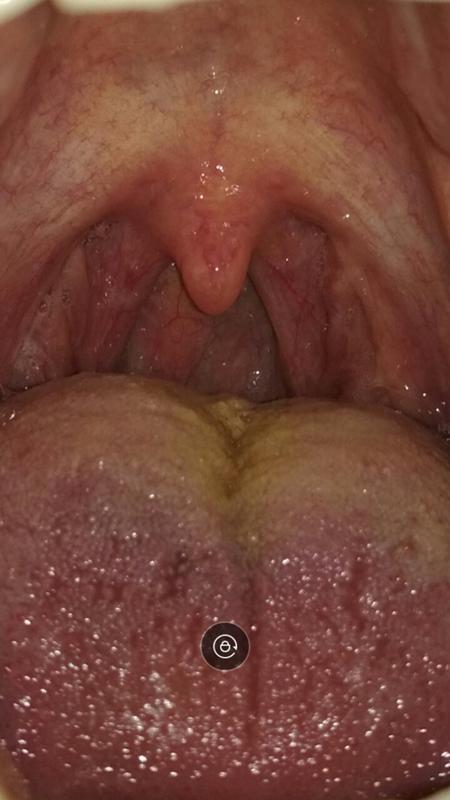 Сильно болит горло у беременной как лечить 17