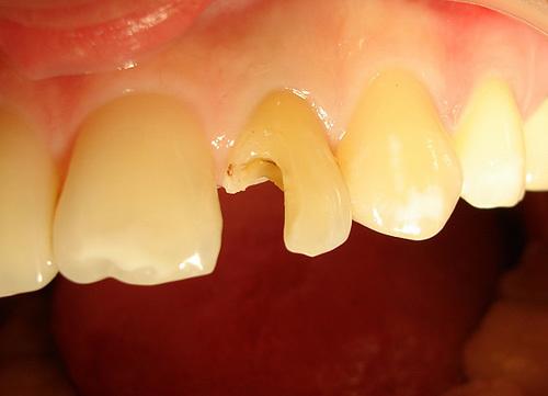 Пломба из зуба в нос