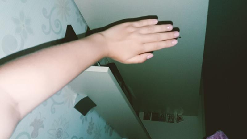 Болит кожа руки при прикосновении на руке