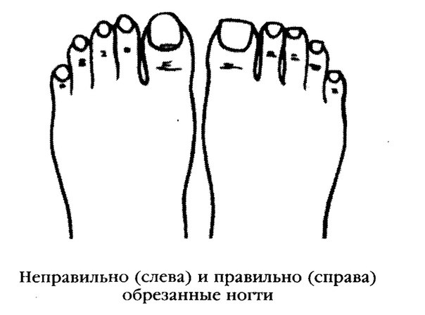 Как стричь ногти при педикюре