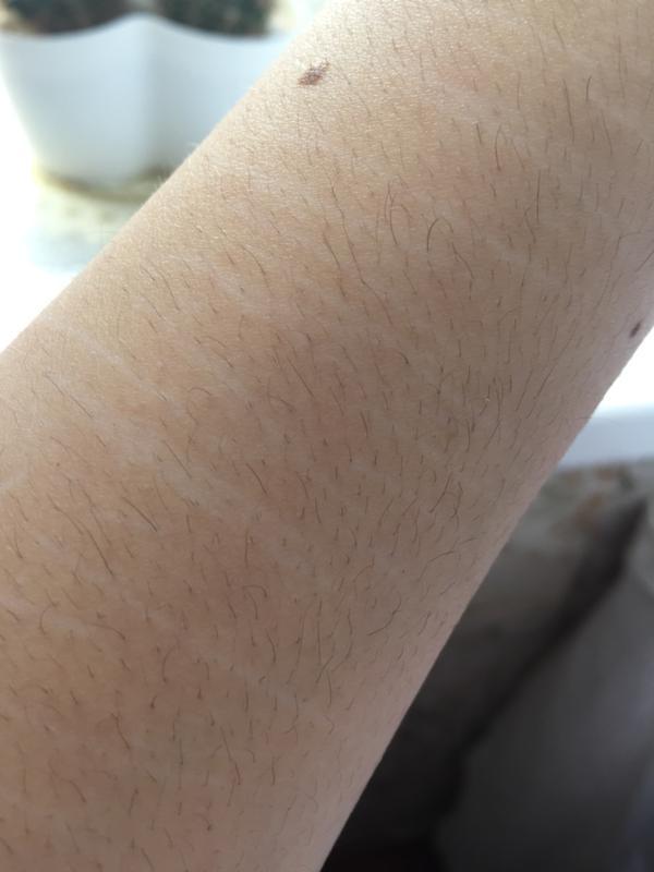 Как избавится от шрамов от пореза в домашних условиях