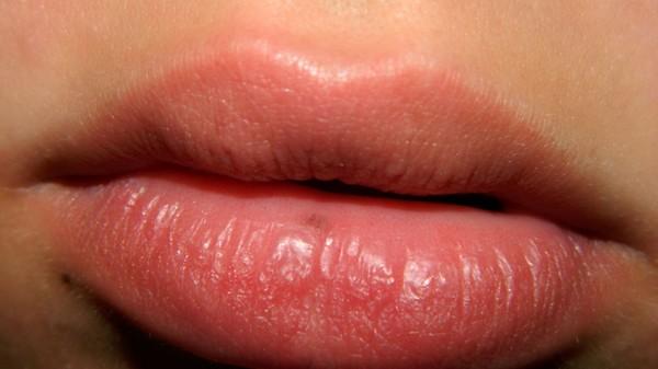 Подскажите что это за пятно на губе?
