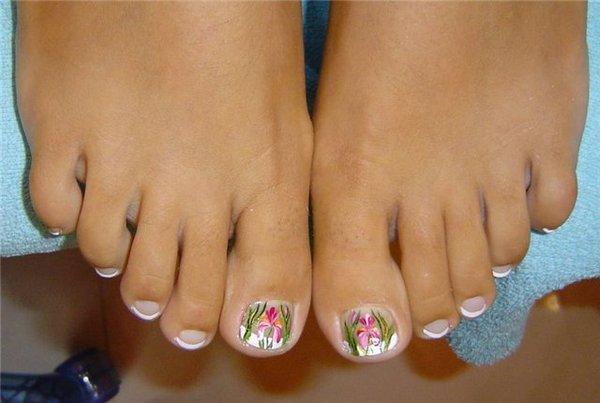 Эффективно ли лечение грибка ногтей йодом