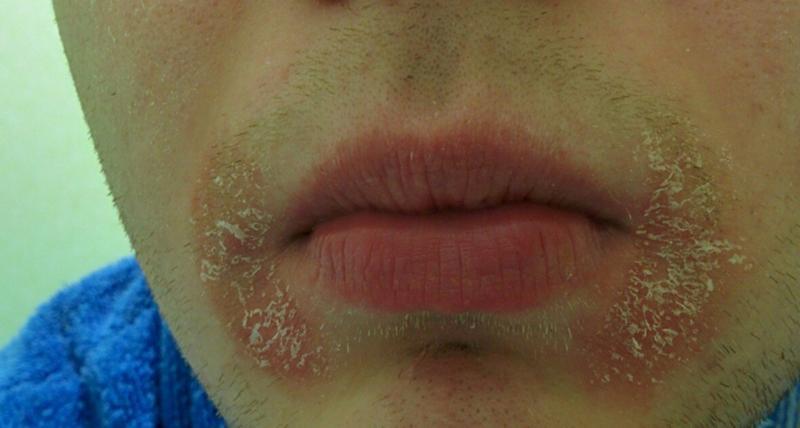 На губах красные пятна как лечить