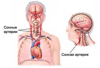 Сужена сонная артерия что делать