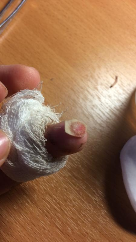 Что делать если кожа оторвалась от головки