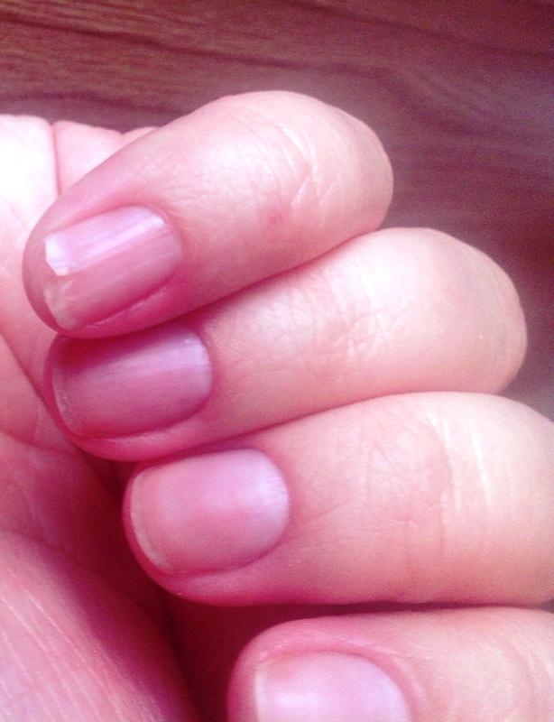 Ногти трескаются вдоль что делать