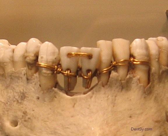 Протезирование зубов абхазия