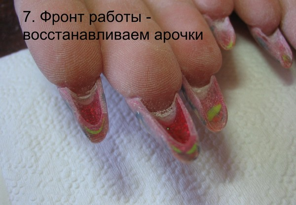 Что делать когда загибаются ногти на руках