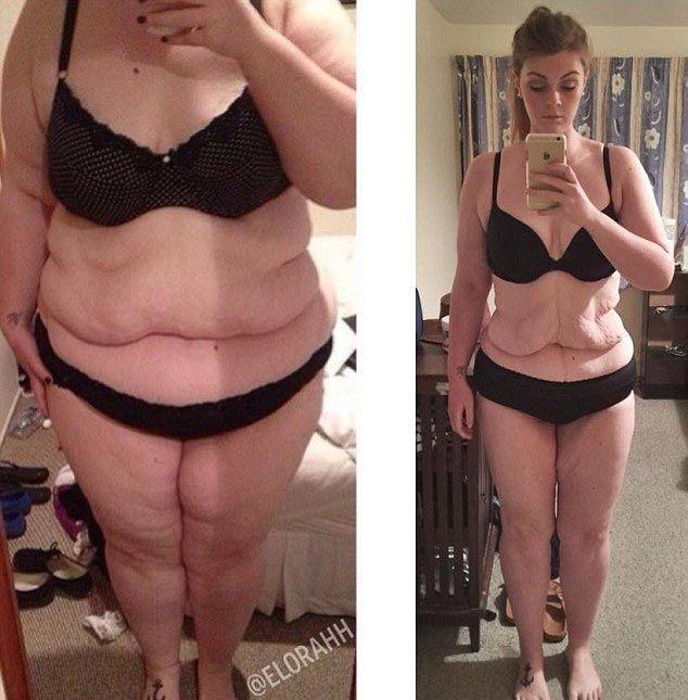 Средства против обвисания кожи при похудения Средства для похудения от. - hudobi