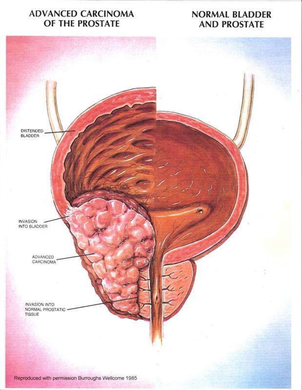 Как лечить аденома простата народным медицинам